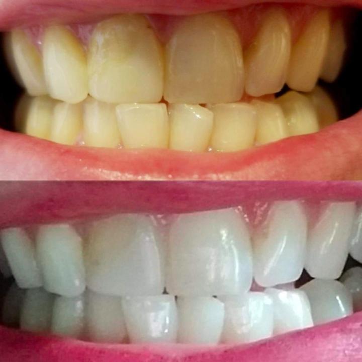 20 Teeth Whiteners That Work So Well It S Like Magic