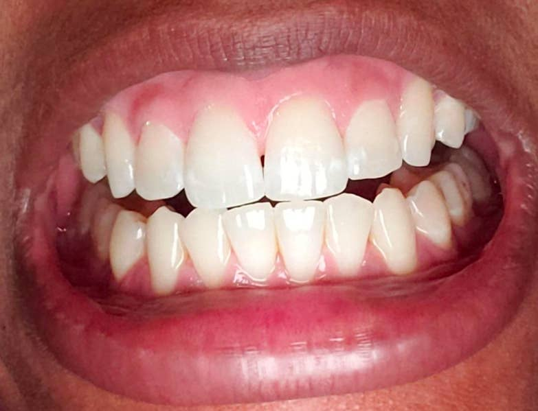 20 Teeth Whiteners That Work So Well It S Like Magic