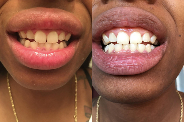 20 Teeth Whiteners That Work So Well, It's Basically Witchcraft