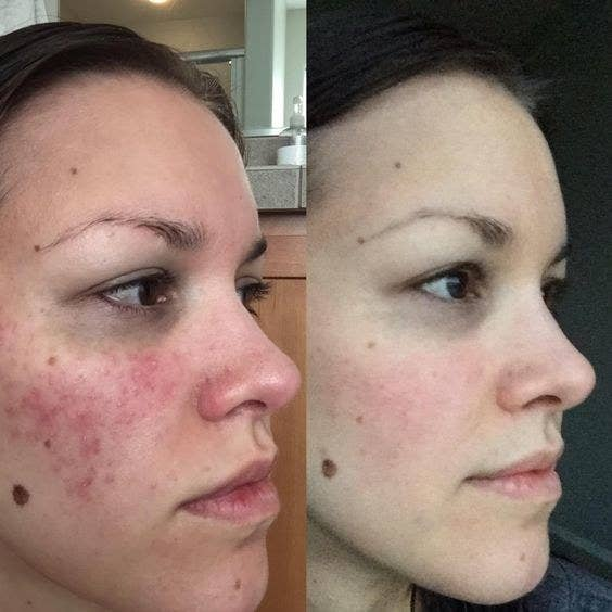 on left, reviewer's face covered in acne and red spots. on right, reviewer's blemish-free face after using CeraVe Moisturizing Cream