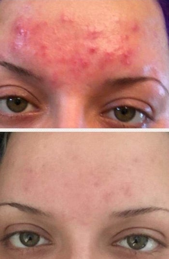 on top, forehead with red and irritated acne bumps. on bottom, forehead with less acne and irritation after using the acne cleanser