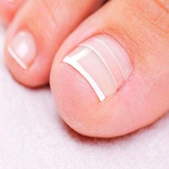 a close up of a flattened toenail