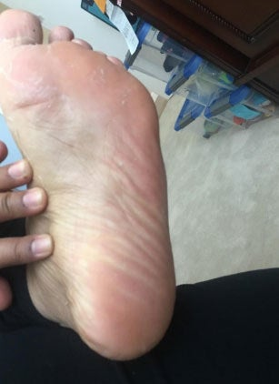 an after photo of a foot with healed skin