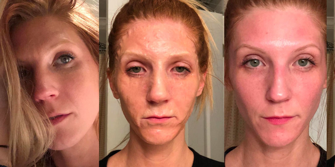10 Face Masks With Before And After Photos That Will Make You A Believer
