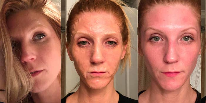 10 Face Masks With Before And After Photos That Will Make