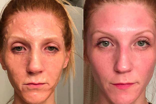 14 Face Masks With Before And After Photos That Will Have You
