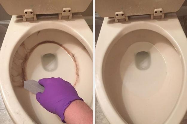 17 Things That Will Rescue Your Gross, Godforsaken Toilet