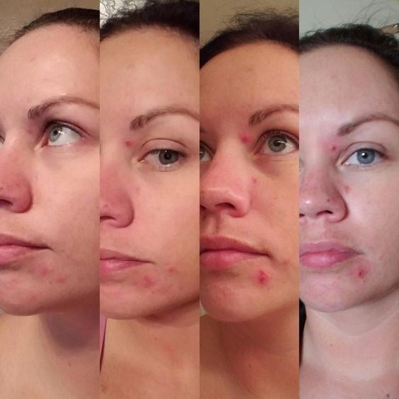 20 Things That Really And Truly Work On Cystic Acne