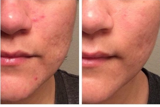 20 Things That Will Actually Treat Cystic Acne