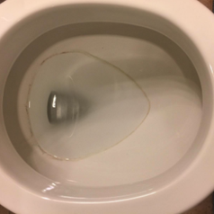 a toilet bowl with a stained ring inside