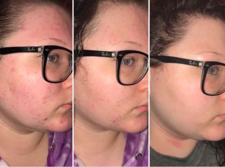 A set of images of the same reviewer with acne and blemishes on their skin dissipating over time