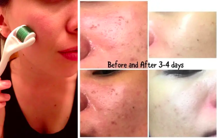Reviewer using the derma roller and the same reviewer's decrease in blemishes over time