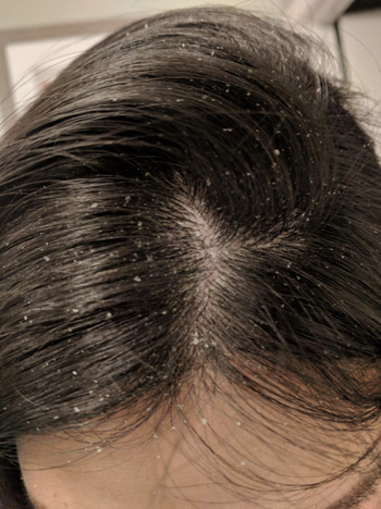 a person showing their hair before using the set