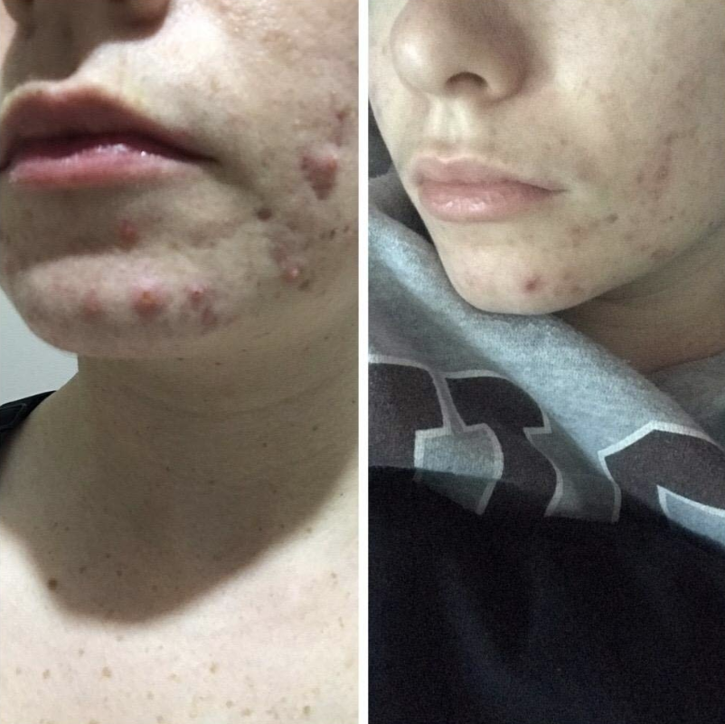 A before and after photo showing how the mask can reduce acne