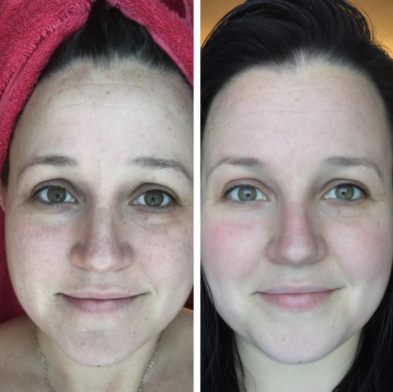 A before and after photo of a reviewer's skin with dark visibly lightened after using the serum