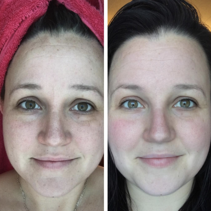 "Promising review: ""I love love love this product! I'm nearing 30 and needed a good skin care regimen, as I've NEVER had one. I can't believe my results! Not only has it taken away all dullness, it has reversed some sun damage! My before and after pictures are taken WITHOUT filters in the same lighting/same area of my bathroom. I'm highly satisfied!"" —Heather C.Get it from Amazon for $19.99+ (available in two sizes)."
