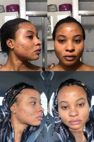 Reviewer with before and after photos showing progress with acne clearing up