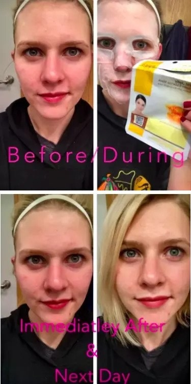 a series of four reviewer photos showing redness reduction and results from using the face masks