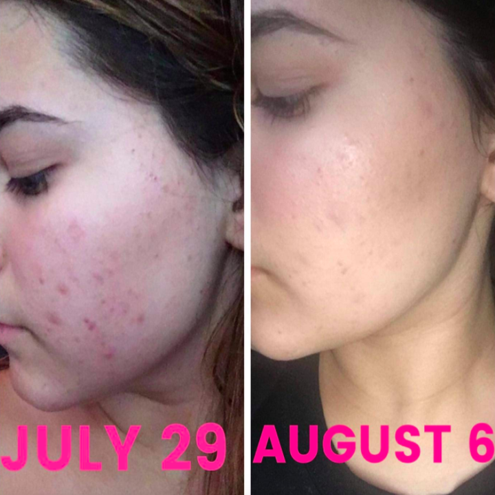 A customer review photo of before and after using African Black Soap on their face.