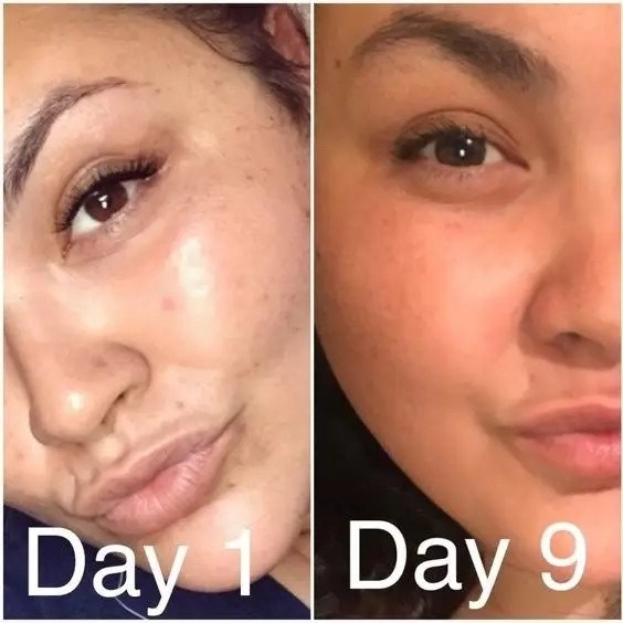 a reviewer's before and after photo with a reduction in dark spots over time