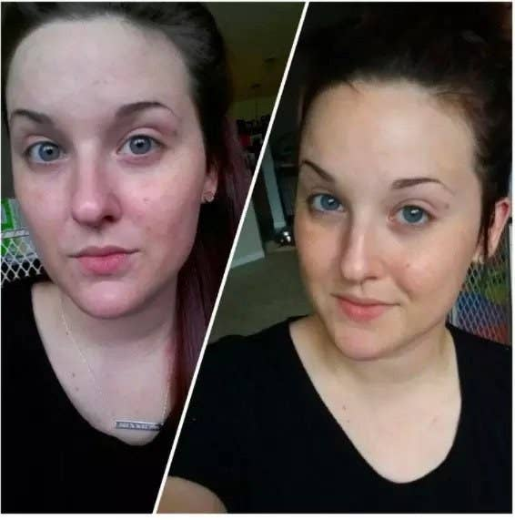 A reviewer's photo showing red skin before using the product and clear skin after use