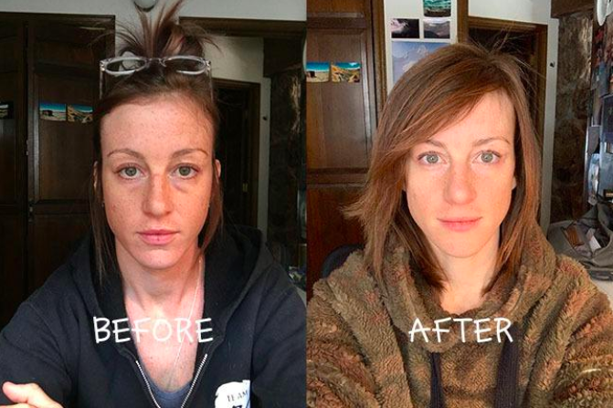 a reviewer's before photo showing their dark eye circles and after photo showing brighter skin with no eye ciricles