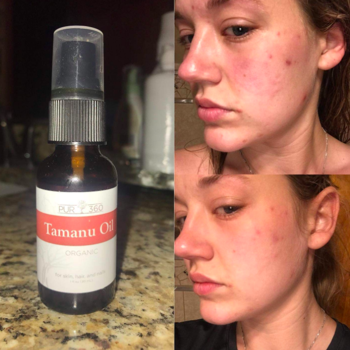 24 Products To Help You Deal With Acne Scars