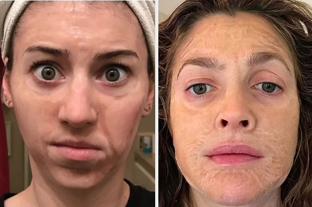 I Tried The Hanacure Face Mask That Celebrities And Influencers Rave About And DAMN