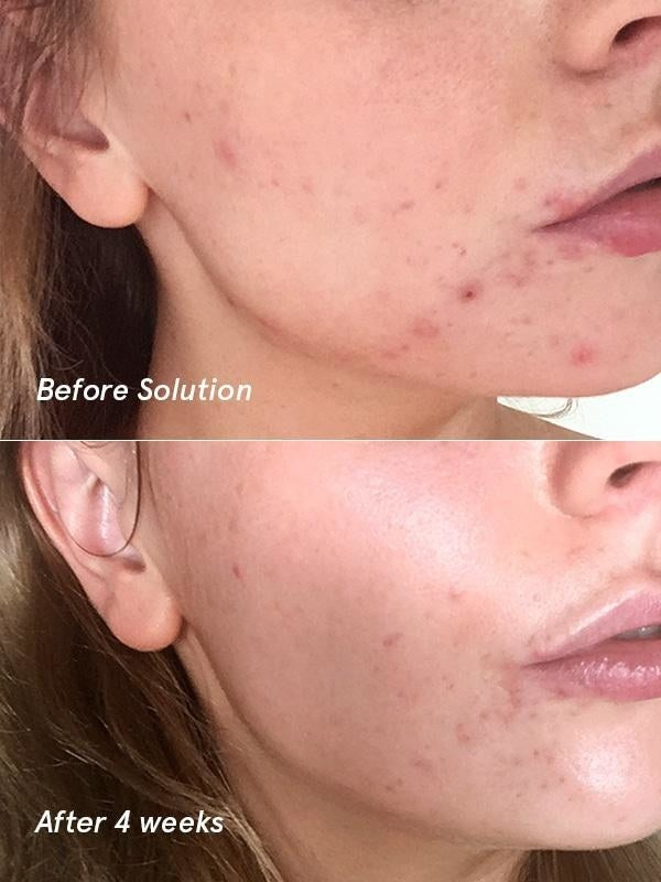 "In a clinical trial, 3/4 users reported cleaner + softer skin after 24 hours, and after four weeks of use, 7/10 users said their skin looked TRANSFORMED.Promising review: ""I have been struggling with acne for as long as I can remember and Solution has SAVED my skin. Haven't had a pimple since I started using this last month. My usually oily skin has been so soft and glowing and my years of acne scars are vanishing. 100% worth every penny."" —MRBGet it from Glossier for $24.We *also* love solution — learn why several BuzzFeeders love it in Here's Why The Mega-Popular Glossier Solution Is Totally Worth Your Money."