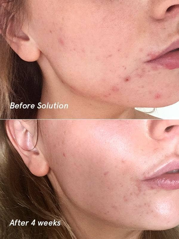 A before/after of a model with reduced acne and more glowing skin