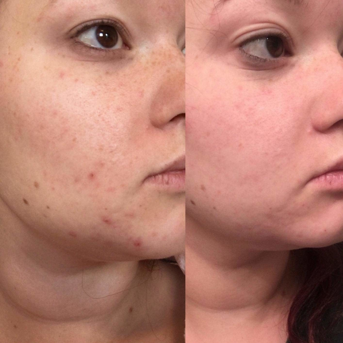 A reviewer's skin in a before/after with reduced acne