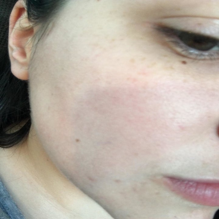 The same cheek with no redness or irritation