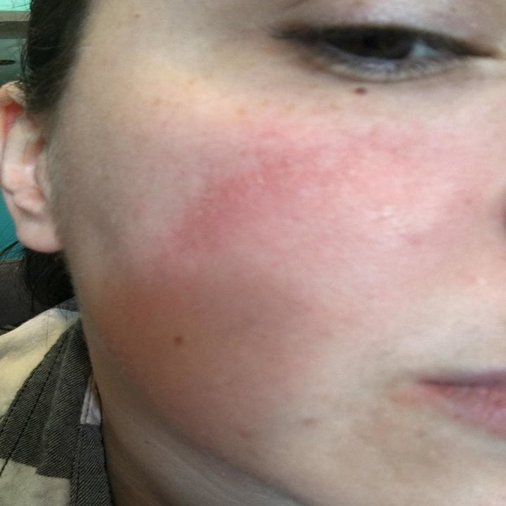A reviewer's cheek with red skin