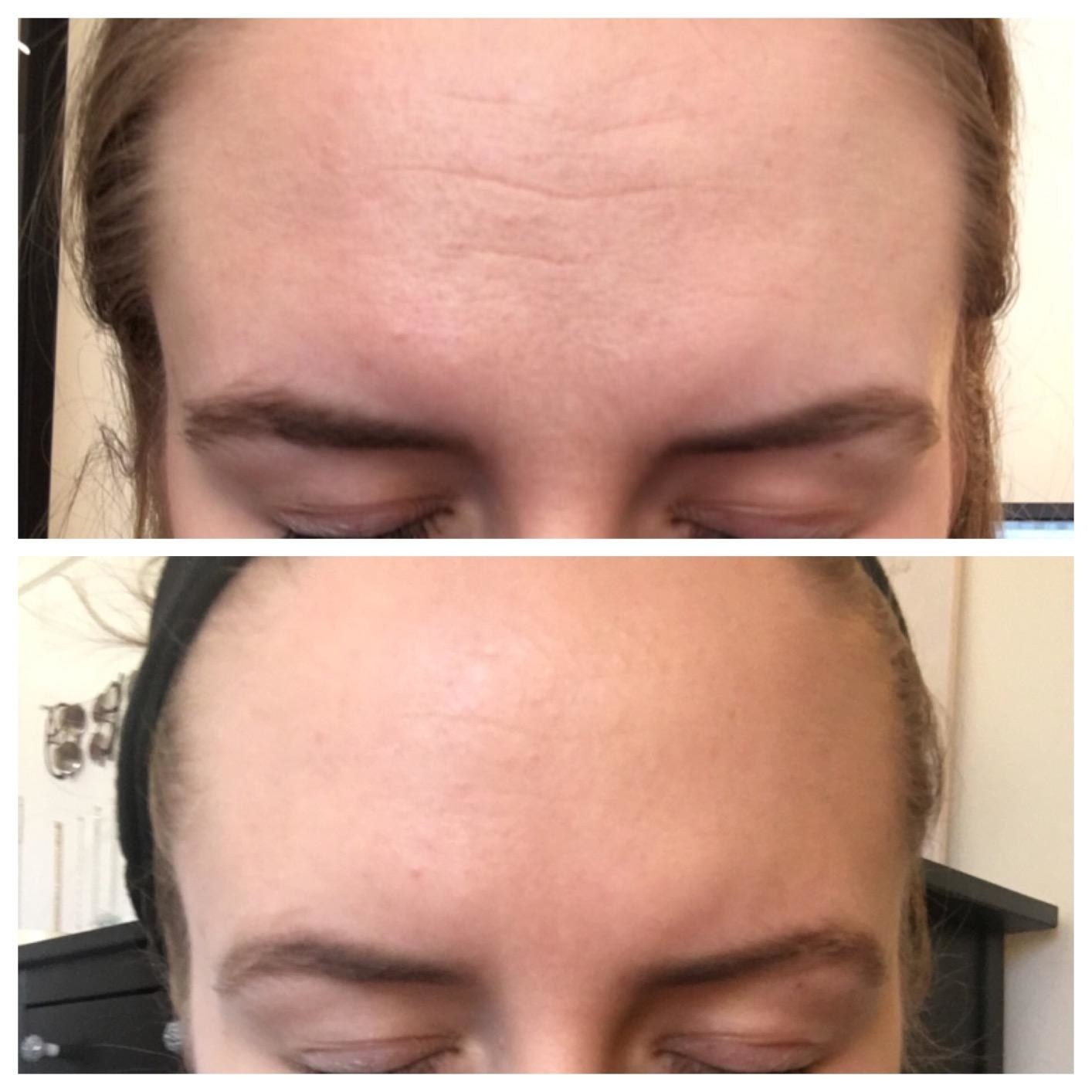 A reviewer's forehead in two images: on top with more pronounced wrinkles, on the bottom with reduced lines