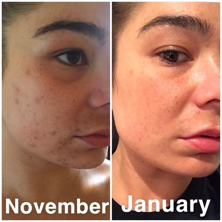 A reviewer with decreased acne and more glowing skin between photos taken in november and january