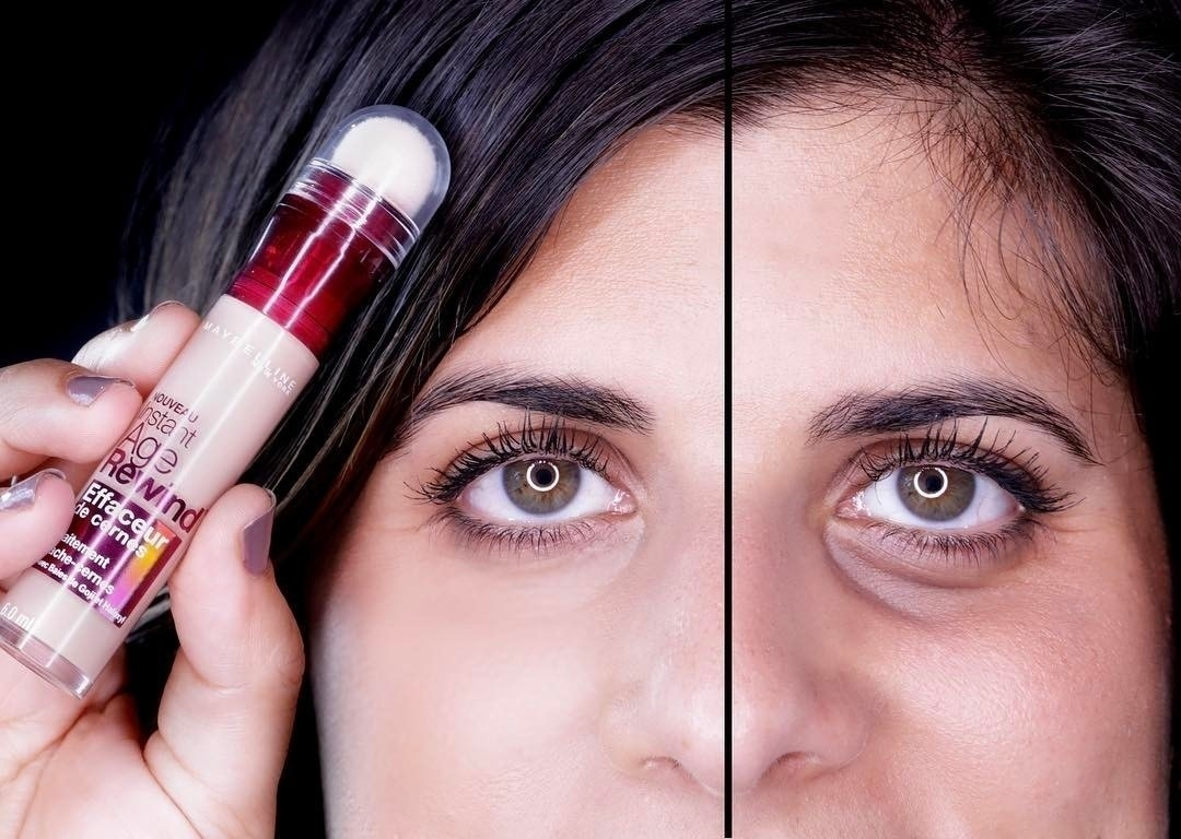 Model's before and after photo showing the how well the concealer covers dark circles