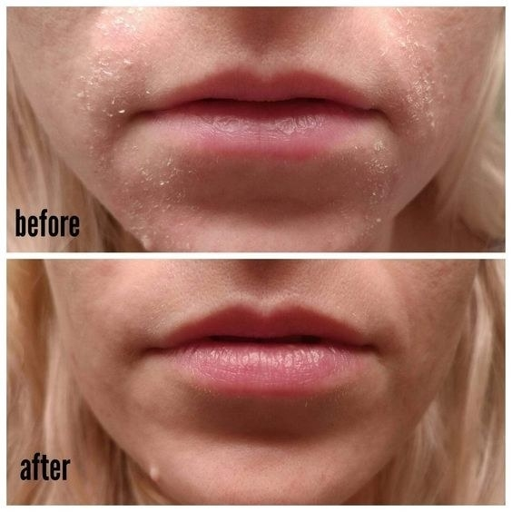 A reviewer's chin before/after use with reduced dryness and flakiness