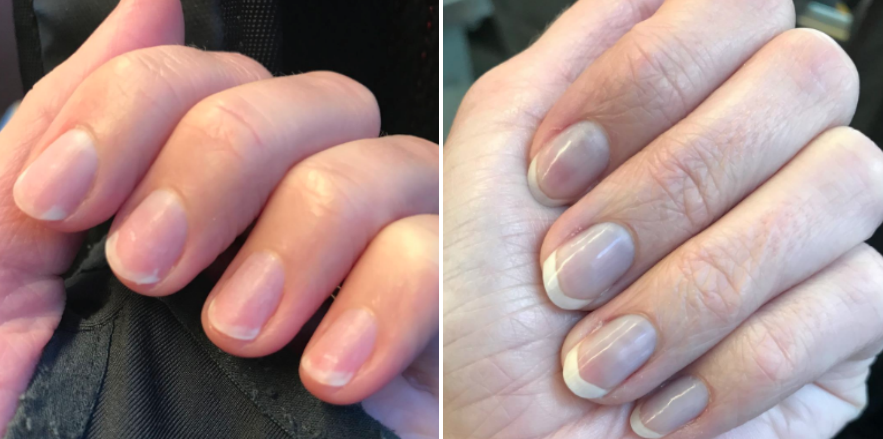 before/after of reviewer's nails after using the cuticle cream to help make nails appear longer and stronger