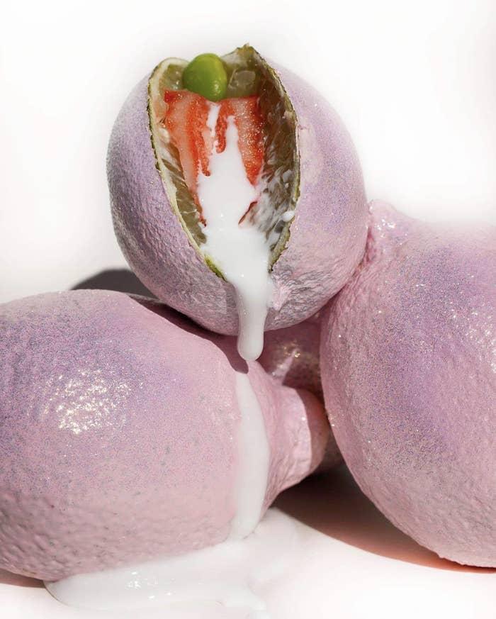varizes vulva não está grávida