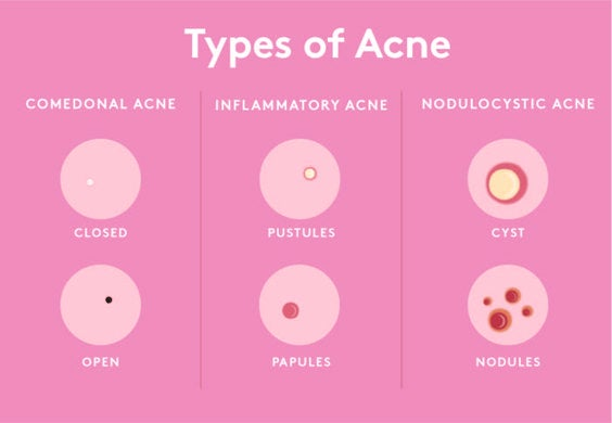 Chart for identifying acne