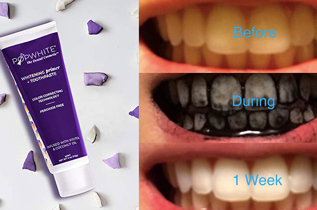 24 Of The Best Teeth Whiteners You Can Get On Amazon