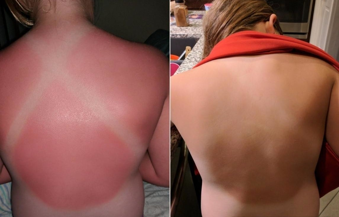 Reviewer before and after photos showing a red, sunburned back returning to normal skin tone after applying the lotion