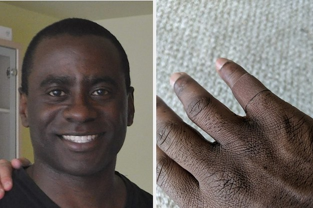 A 45-Year-Old Man Shared An Emotional Reaction To Putting On A Bandage In His Skin Tone For The First Time