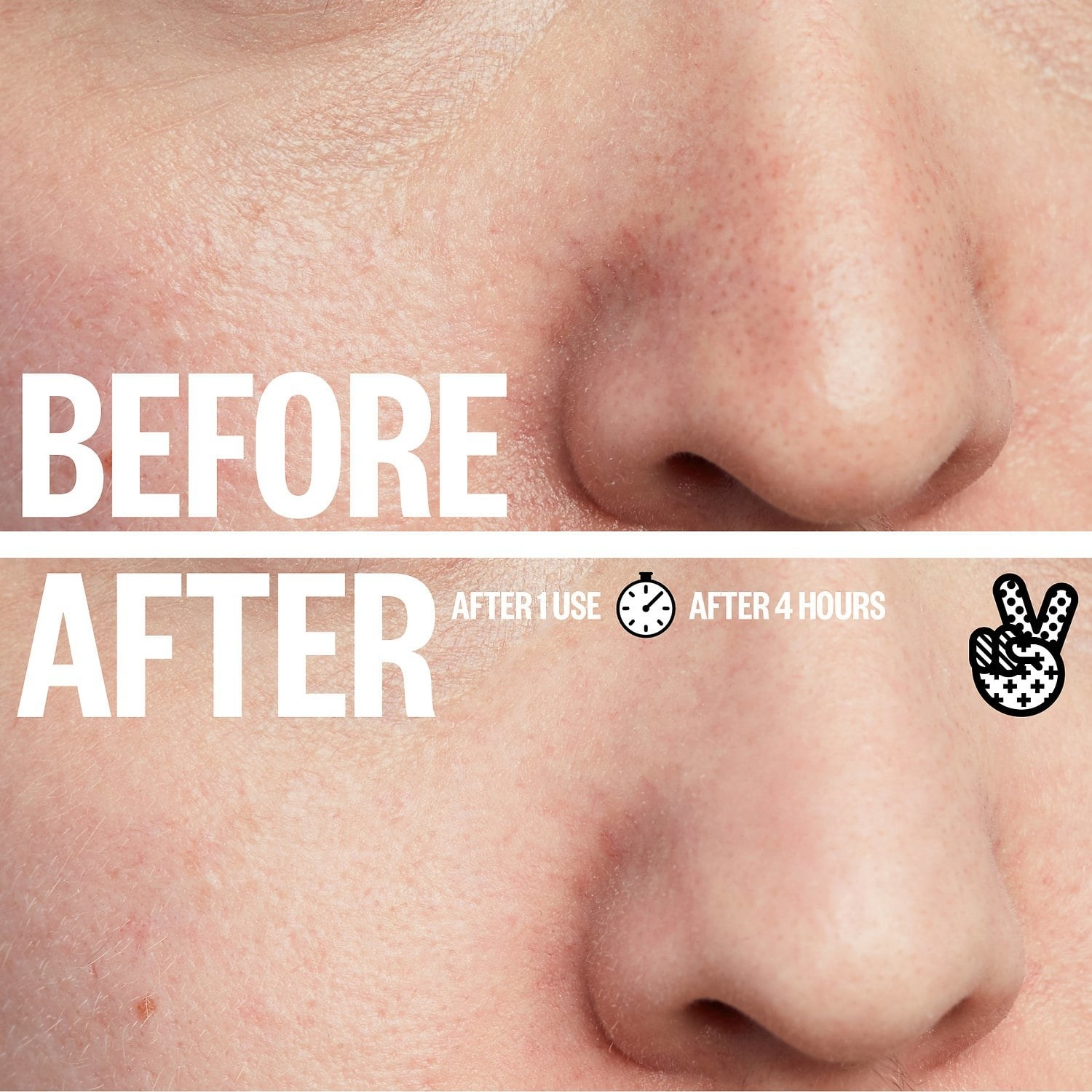 A before/after showing the difference after using the strips for four hours, with less visible pores after and fewer blackheads