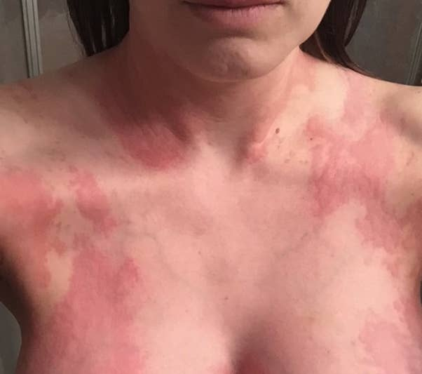 mast cell activation syndrome rash