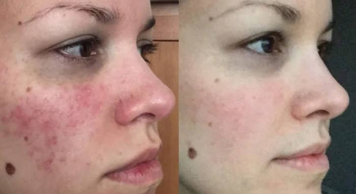 """A person's face before: you see general redness all over that could be caused by dryness, and some acne especially on the cheek area. And the """"after"""" photo, where their face looks clear with minimal redness"""