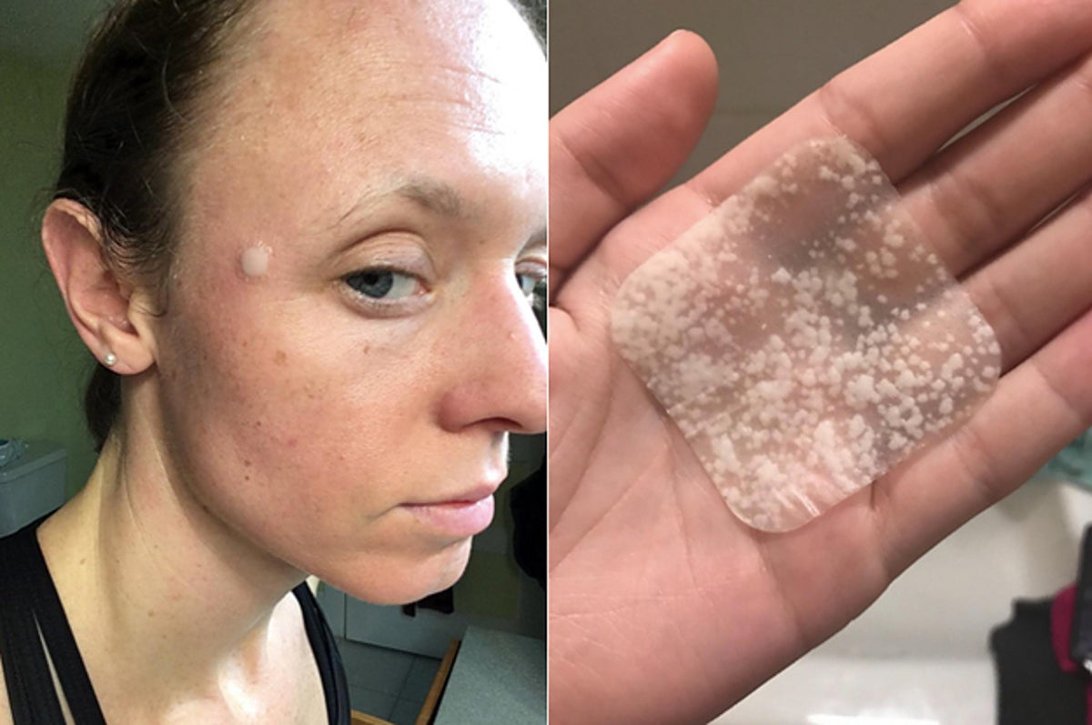 To get rid of spots