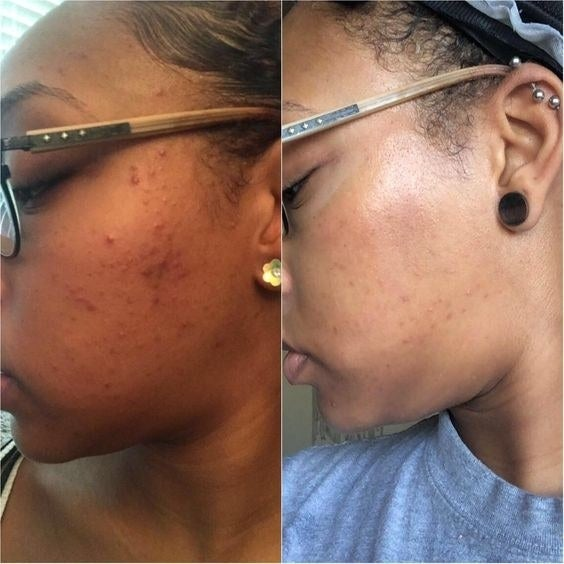 Reviewer's before-and-after of their cheek acne and then almost fully clear cheek with minimal scarring