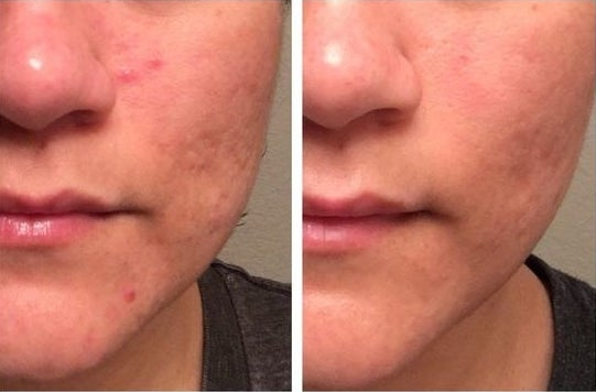 Reviewer's before-and-after of mild acne and then clear skin
