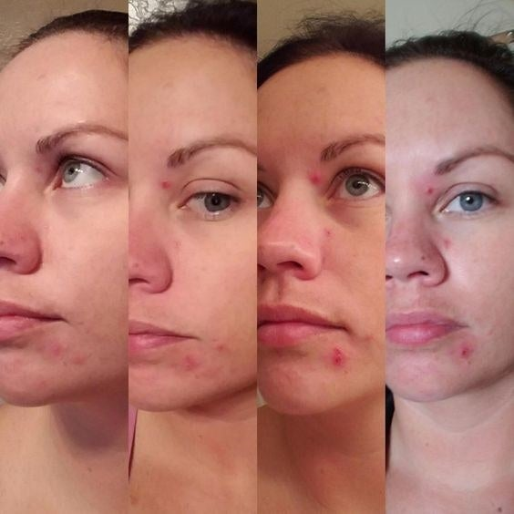 Reviewer's photos of clearing their cystic acne in four stages